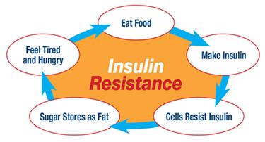 Insuliinitundlikkus