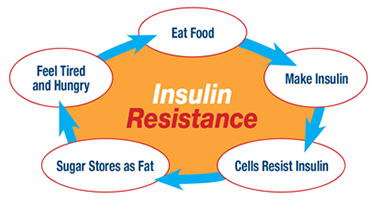 Paranda insuliinitundlikkust ja kiirenda rasvapõletust! Nipid!